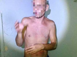 У Кропивницькому через конфлікт чоловік ледь не зарізав свого сусіда