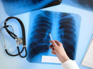 На Кіровоградщині спостерігається зменшення рівня захворюваності на туберкульоз