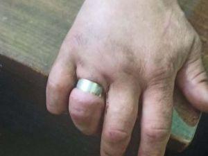 В Олександрівці чоловік мало не втратив пальця через каблучку