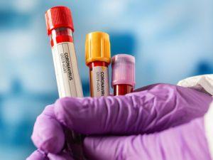112 мешканців Кропивницького одужали від коронавірусу