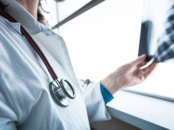 На Кіровоградщині на коронавірус захворіло 103 людини
