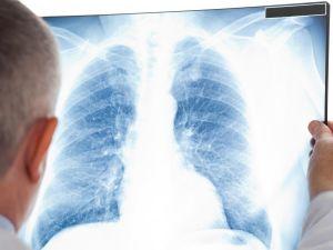 В регіони розподілили препарат для лікування туберкульозу, стійкого до лікарських засобів