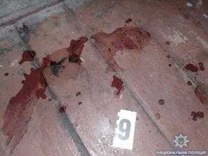 У Гайворонському районі п'яний чоловік під час застілля ледь не зарізав подругу