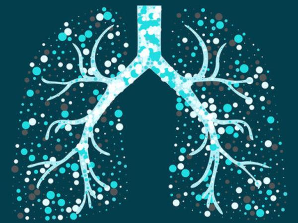 Захворюваність на туберкульоз у Кропивницькому: офіційні дані, лікування