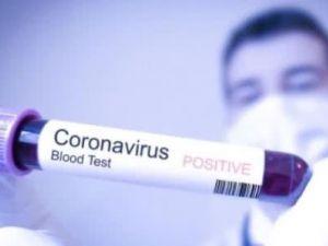 Перша українка в Італії заразилася коронавірусом