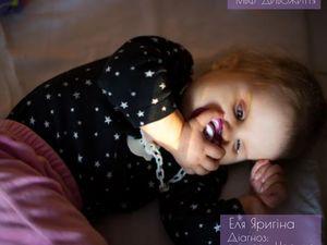 Кропивничани, давайте підтримаємо сім'ю хворої дівчинки - Еліні Яригіної
