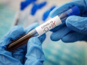 Педагогів Кропивницького тестуватимуть на коронавірус безкоштовно
