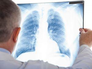 Він вилікував туберкульоз:  Я був готовий на все, щоб вилікуватися