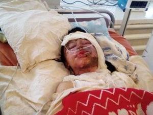 Кіровоградщина: Молода жінка ледве не загинула від рук чоловіка, що хотів спалити її живцем